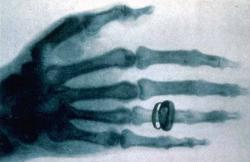 1ere radiographie 1896